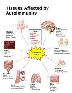 tissues-autoimmun