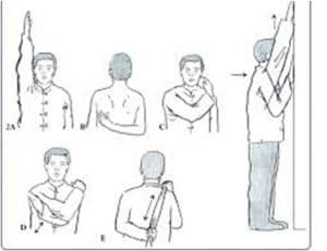 Hashimoto's and Shoulder Pain