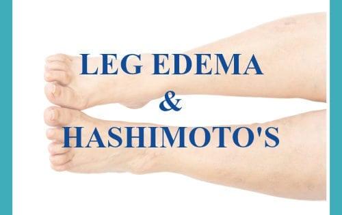 Leg Edema Hashimoto's