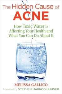 Hidden Causes of Acne Book Cover